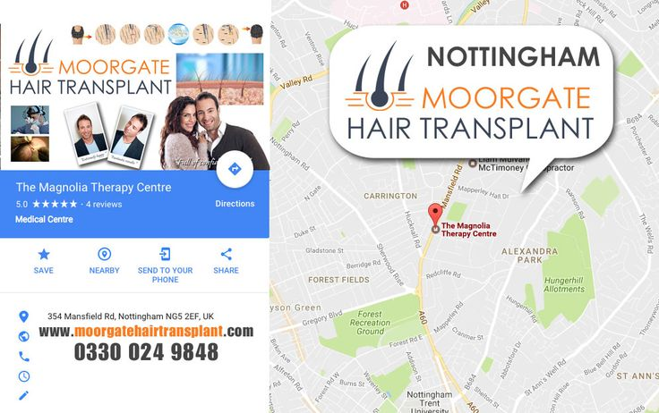 Hair Loss Clinic Nottingham - Moorgate Hair Lossteam in Nottingham have over 35 years of experience in Hair Transplantation. We provide a professional service for both men and women suffering from hair loss in Nottingham