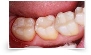 Glass Ionomer Filling http://smiileplease.com/