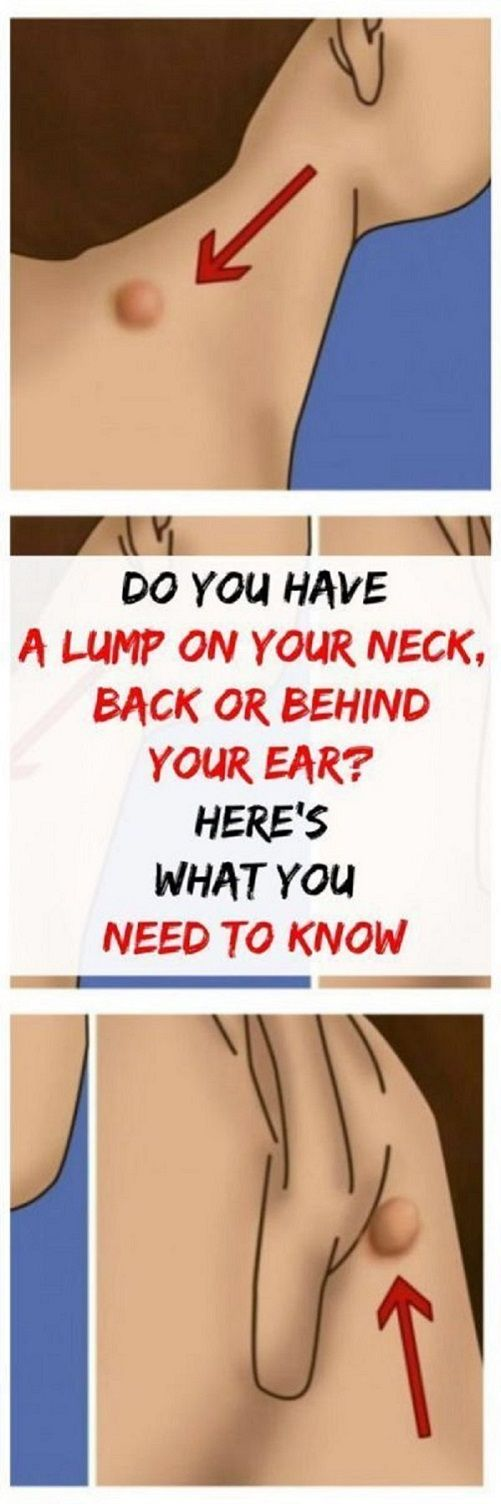 Do you have a lump on your neck, back, or behind your ear? This is what it means!  Do you have a lump on your neck, back, or behind your ear? This is what it means!  #DoYouHaveALumpOnYourNeckBackOrBehinYourEarThisIsWhatItMeans