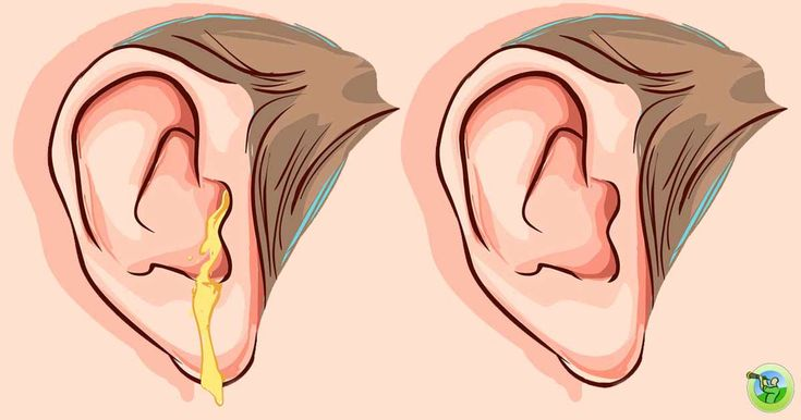 Ear infections can be short but painful, and they are the most common cause of an earache. They happen when the middle ear gets affected by a viral or bacterial infection. In other words, when