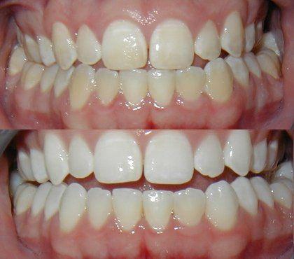 Mi sono fatta la stessa domanda. Per trovare una risposta ho iniziato a scandagliare il web. Ho trovato molte raccomandazioni: lavarsi i denti con il bicarbonato di sodio, utilizzare dentifrici ...