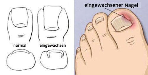 Onychocryptosis ist der Fachausdruck für eingewachsene Nägel. Dazu kommt es häufig, insbesondere beim Tragen unbequemer, unflexibler Schuhe.