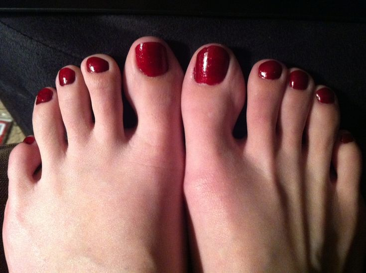 My Boyfriend Has A Foot Fetish  Dating And Relationships -1125