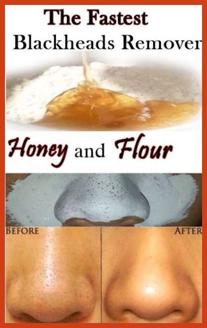 Covering Acne - Best Methods For Removing Acne Scars ** More info could be found at the image url. #AcneSurgery