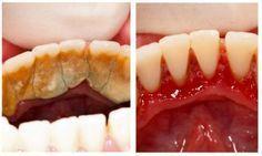 Мы все ненавидим зубной камень. И все ненавидим бывать у стоматолога. Вот вам простой рецепт, который поможет сохранить зубы и легко справиться с такой проблемой, как зубной камень. Если не следить за эмалью и вовремя не удалять зубной налет, может развиться воспалительное заболевание — периодонтит. При периодонтите инфекция проникает через корневой канал в зуб, воспаляется […]