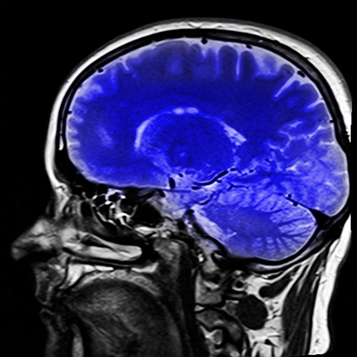 Citation: Virdi K. Nuclear neurology: A significant advancement to diagnose brain disorders Journal of Diagnostic Imaging in Therapy. 2017; 4(1): 27-28. http://dx.doi.org/10.17229/jdit.2017-0313-027