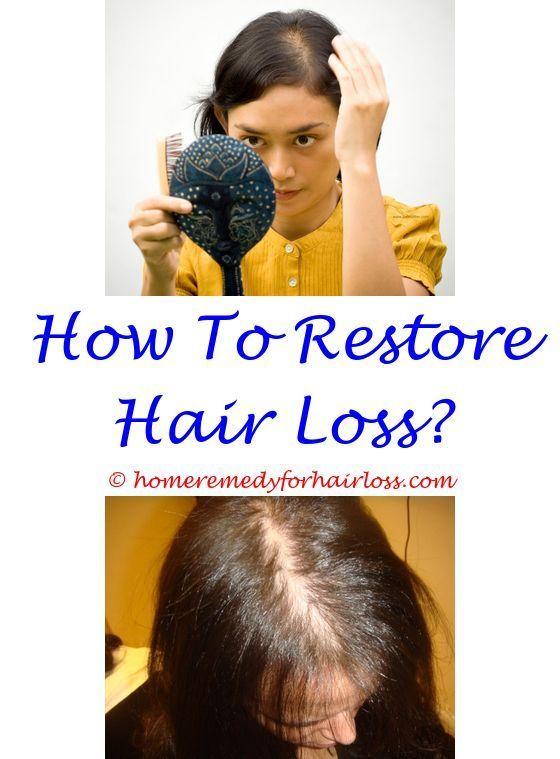 Cat Losing Hair Hair Loss And Hair Loss Treatment