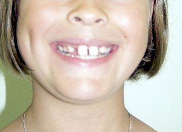 """Лечение и удаление зубов. Примеры работ специалистов стоматологической клиники Ортодонт. """"Было № 1"""""""