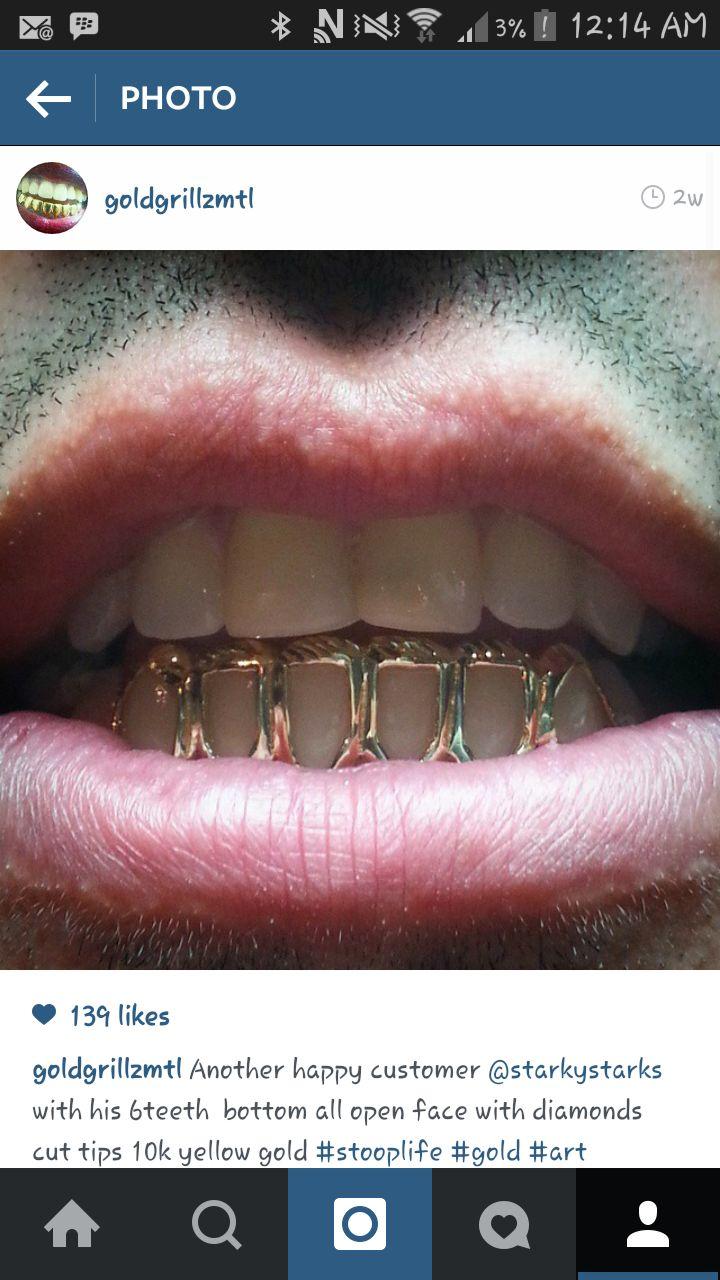 Open face gold grillz. 6 yellow gold teeth, diamond cut.