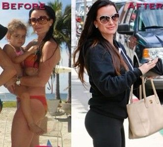 kyle richards/before and after