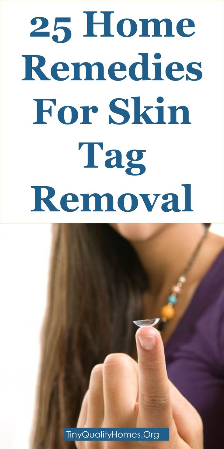 25 Effective Home Remedies For Skin Tag Removal: This Article Discusses Ideas On The Following; How To Get Rid Of Skin Tags On Neck, Removing Skin Tags With Nail Polish, Skin Tag Removal Freezing, Skin Tag Removal Cream, Remedies To Get Rid Of Skin Tags On Eyelids, Skin Tag Removal Products, What Is The Cause Of Skin Tags?, Skin Tag Removal: Apple Cider Vinegar Vs Tea Tree Oil, Overnight Skin Tag Removal Kit, Etc.