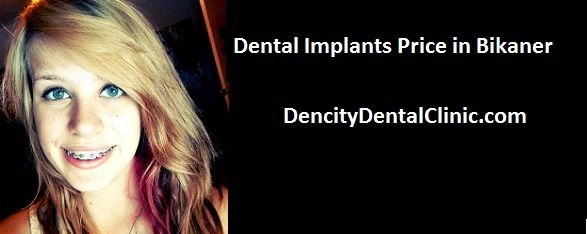 dental implants prices - A dental implant is an artificial tooth root that is put into your jaw to hold a replacement tooth or bridge of a person. Dental implants may be an alternative for people who have lost a tooth or teeth due to some periodontal disease, an injury, or some other reason in this world.