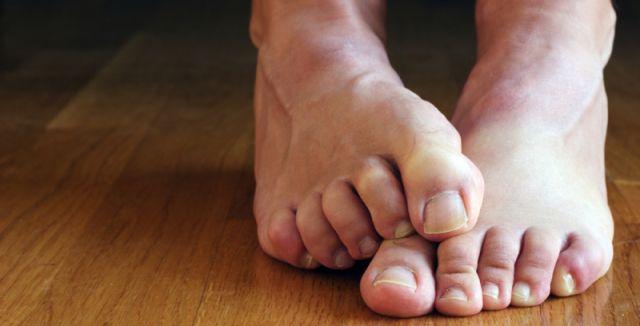 Páchnoucí nohy jsou velmi častým problémem, který dokáže způsobit i psychické potíže.