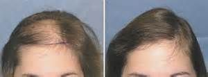 women hair loss before and after - Provillus natural hair regrowth solutions treat thinning hair. Contains minoxidil 5% which cures alopecia areata, androgenic, pattern baldness.  Provillus Natural Hair Growth Treatment, Minoxidil 5% For Alopecia Hair Loss  http://www.provillushairlosscures.com #hairlosswomentreatments #naturalthinninghairsolutions #thinninghairwomen