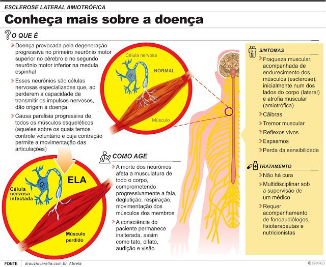 Esclerose lateral amiotrófica: composto pode abrandar progressão da doença  Um subproduto bacteriano conhecido por ser importante na manutenção da saúde intestinal pode retardar a progressão da esclerose lateral amiotrófica