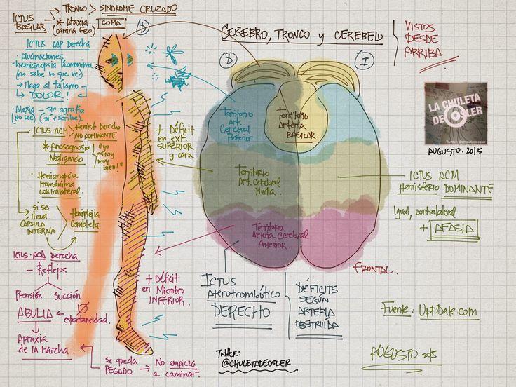 La Chuleta de Osler: Neurología: Mapeo de focalidad neurológia en un ictus