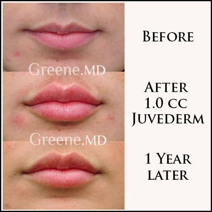 Long-lasting lip filler results by Dr. Ryan Greene. Lip filler still present one year after treatment.