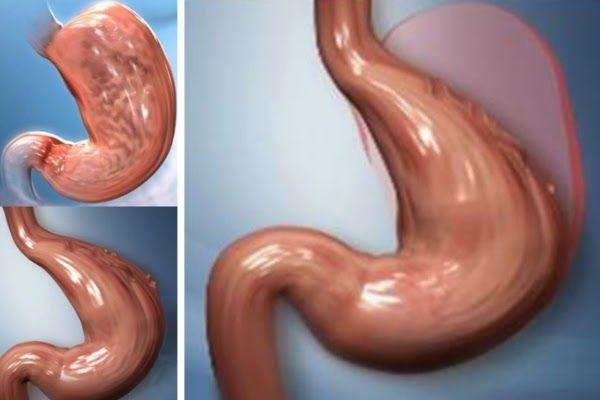 ¿Como reducir tu estómago y apetito sin cirugía de forma 100% Natural? - ConsejosdeSalud.info