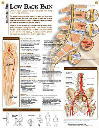 Low Back Pain anatomy poster shows lower spine, pelvis tumors, infections, degenerative disease, ankylosing sponylitis...