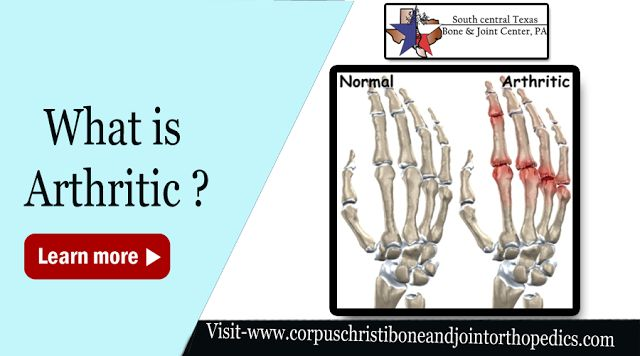 South Central Texas Bone and Joint Center, PA: Medical Synopsis about Arthritis – Page from a Doc...