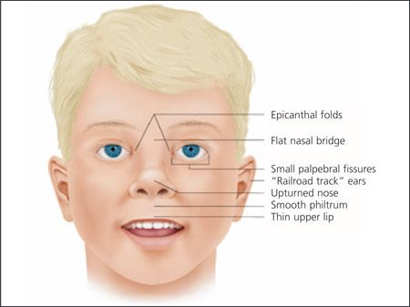 Symptoms & signs of Fetal Alcohol Spectrum Disorder #FASD facial features- Important info #adoption #specialneeds
