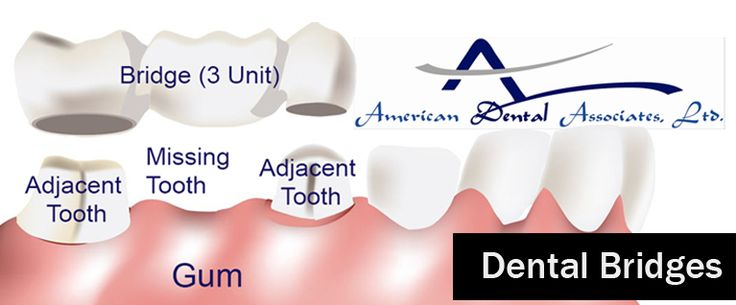 Learn about dental bridges, benefits, costs and is types.