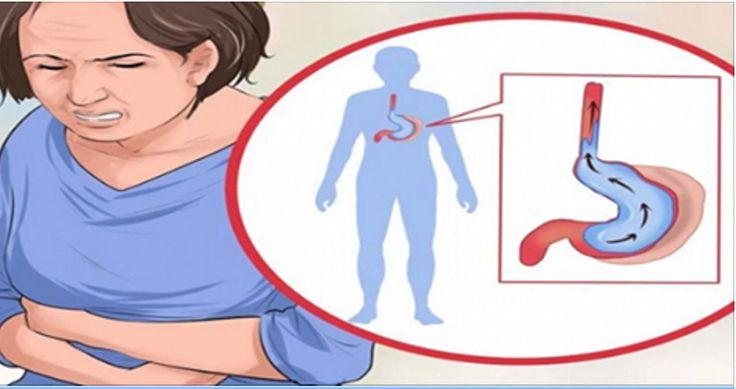 O refluxo gastroesofágico é uma das doenças que mais ocorrem no aparelho digestivo.Milhões de pessoas em todo o mundo sofrem de refluxo.E isso se deve ao tipo de alimentação e ao estilo de vida que levamos.