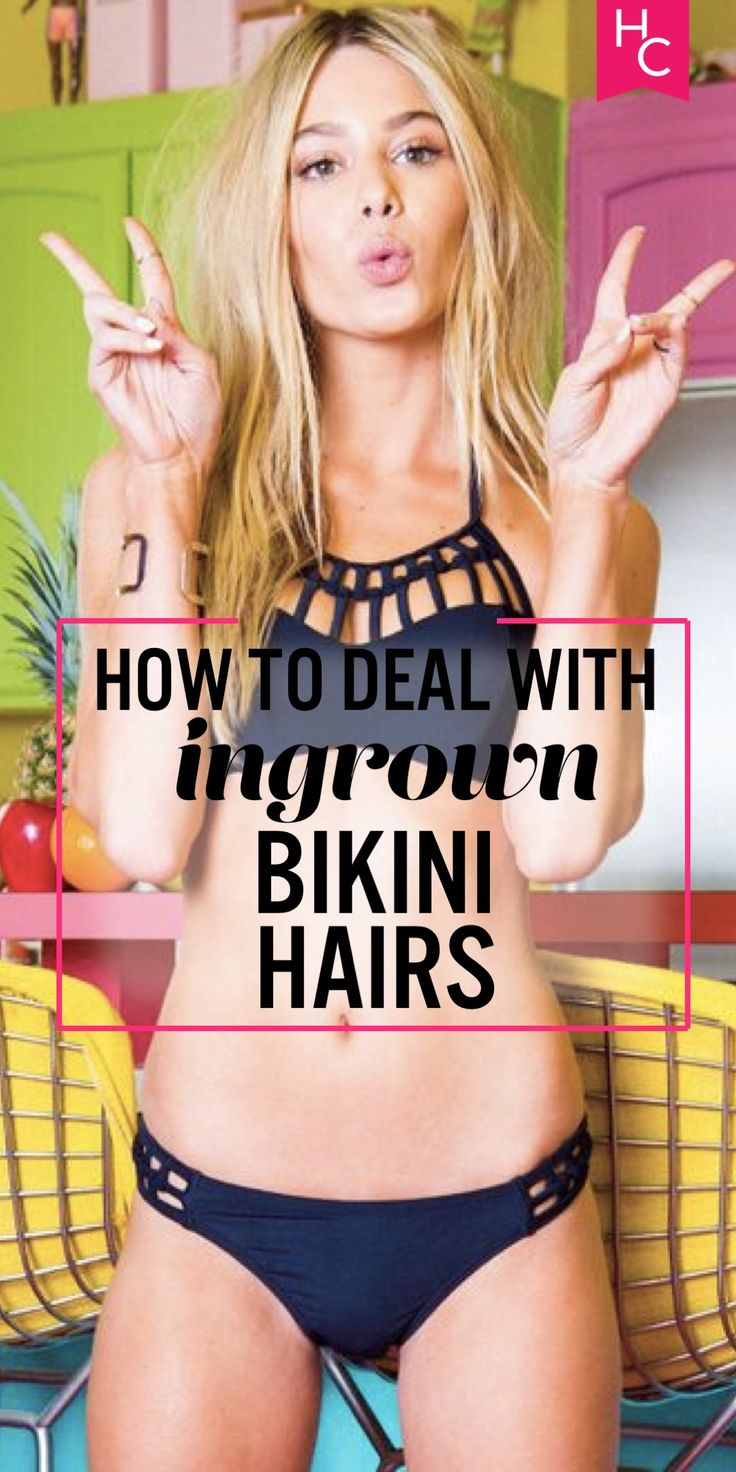 How to Deal with Bikini Area Ingrown Hairs (& Not Get Them in the First Place!) | Her Campus | http://www.hercampus.com/health/physical-health/how-deal-bikini-area-ingrown-hairs-not-get-them-first-place