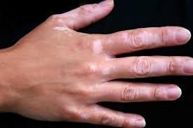 Las quemaduras solares pueden causar vitiligo