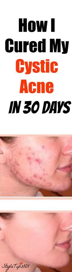 how-i-cured-my-cystic-acne-in-30-days