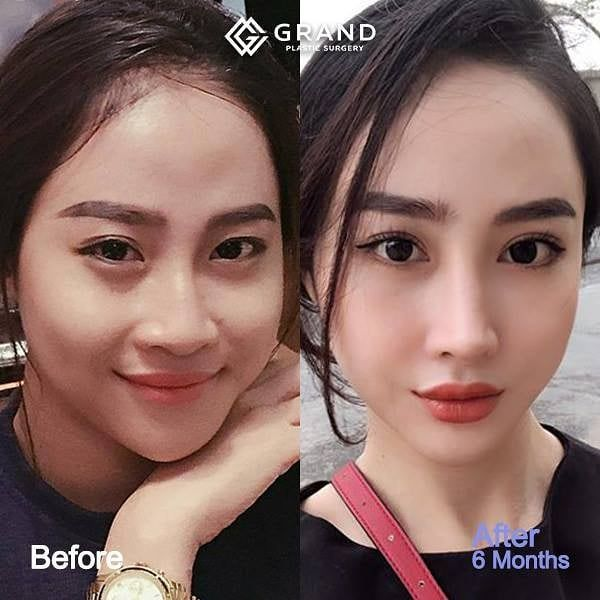 Grand Plastic Surgery On Instagram Here At Grand We Use Laser In The Case Of Bone Surgery Since It In 2020 Plastic Surgery Korea Facial Surgery Korean Plastic Surgery
