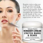 Remove and get rid of Stretch marks mQSv7 Abuela's beauty DIY: Try this all-natural cream for stretch marks stretch marks, stretch mark removal, best stretch mark cream, stretch marks cream, how to remove stretch marks, stretch mark removal cream, get rid