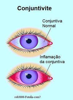 Conjuntivite viral,bacteriana,olhos vermelhos