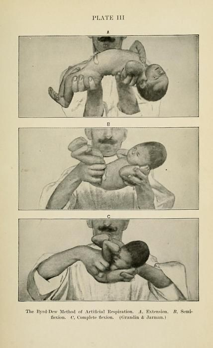 "Como dar Respiración artificial a un bebé. Tomado de ""Louis Fischers' Diseases of Infancy and Childhood"", 1912."
