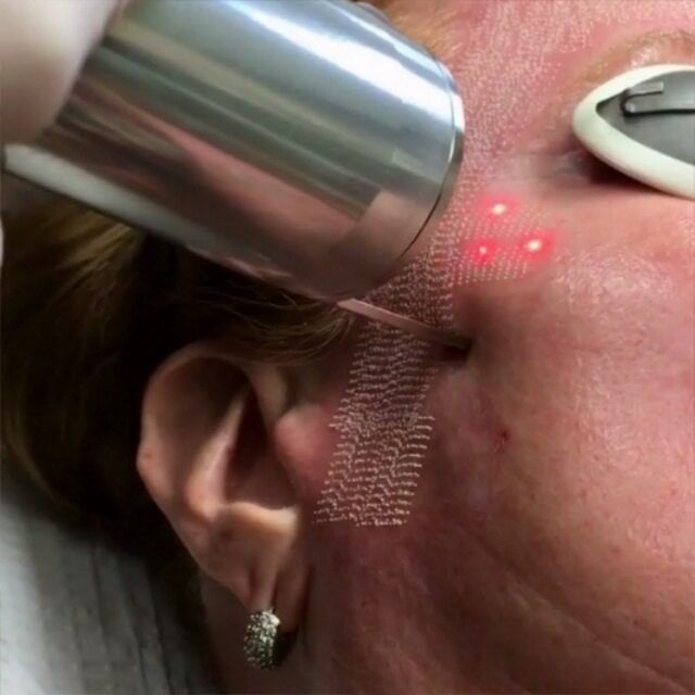 """LASER THERAPY ⏩⏩⏩ Acne Scarring Treated with the Laser- Fractional CO2 Laser  Fractional CO2 Laser is a Good Wrinkle Treatment, but can Thin the Skin if Overused.  CO2 FRACTIONAL Laser RESURFACING:  The Carbon Dioxide (C02) Fractional Laser Resurfacing removes layers of skin tissue in a fractionated method (columns of skin are removed, leaving the skin surrounding each column intact to aid in healing) to help reduce """"age-spots"""" (also called sun freckles, liver spots, an..."""
