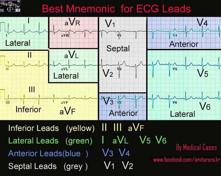 ECG Interpretation Made Easy Online
