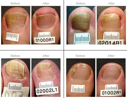 83 best Chapter 14 Nail Disorders images on Pinterest