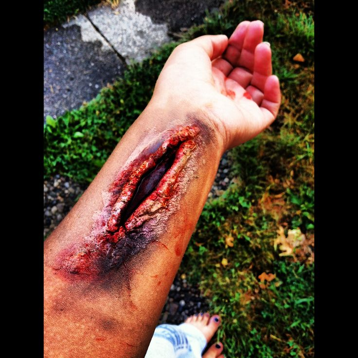 27 best Wounds, cuts, bruises! images on Pinterest | Halloween ...