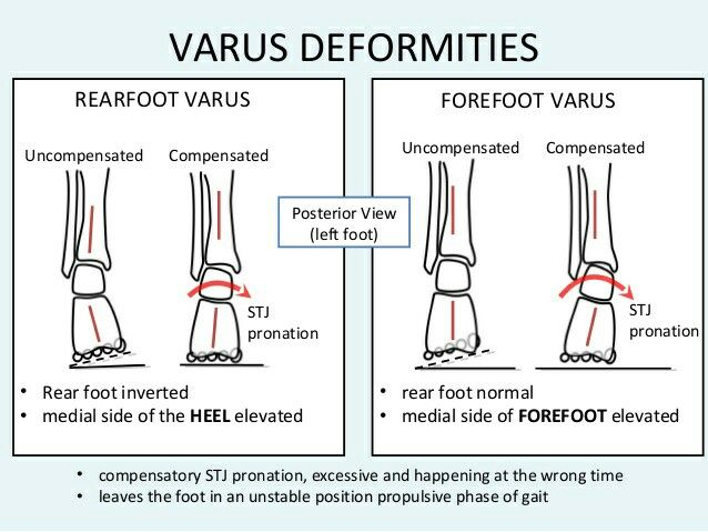 Varus Deformities of the Forefoot and Heal