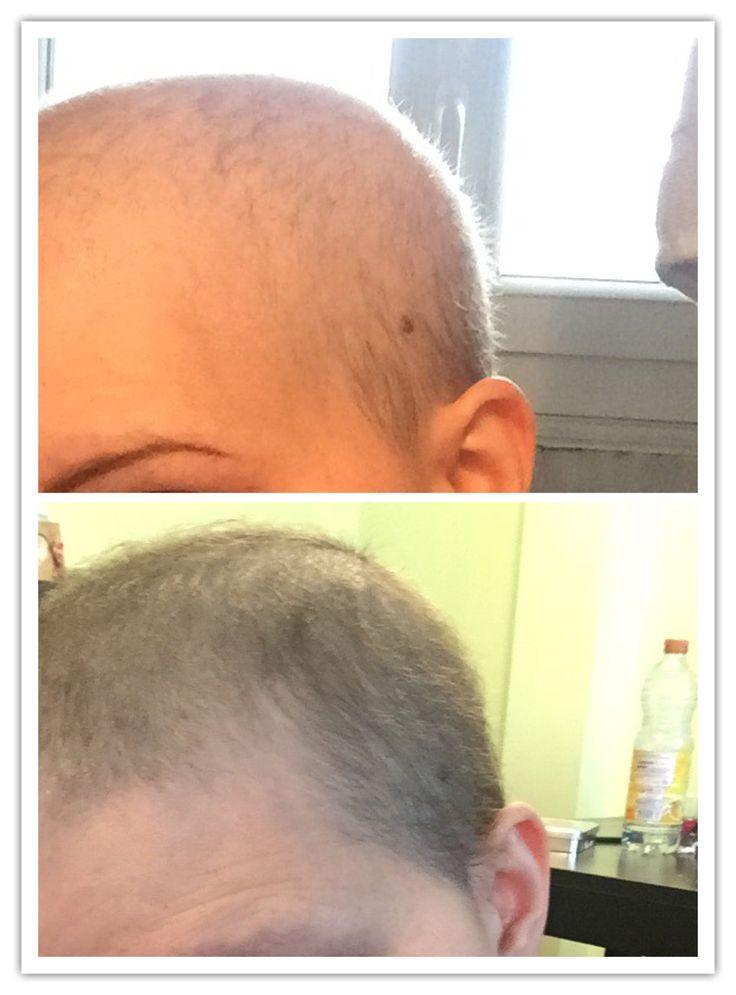 Repousse des cheveux apres chimio femme