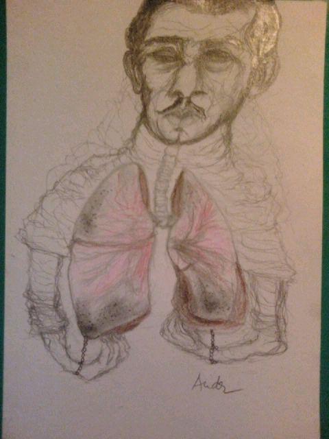 A TBC-s Gavrilo Princip