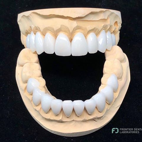 Elionil Junior Kak Vam Metodika How Do You Like The Technique Stomatologiyamoskva Lecheniezubov Stomatologmoskva Dental Esthetic Dentistry Dental Ceramics