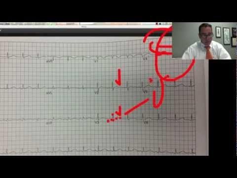 YouTube - EKG  EMS  Lecture  Prt. 2, Dr. Carlo Oller