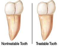 A cracked tooth means a crack extends from the chewing surface of your tooth vertically toward the root. The tooth is not yet separated into pieces, though the crack may gradually spread. Early diagnosis is important in order to save the tooth. If the crack has extended into the pulp, the tooth can be treated with a root canal procedure. However, if the crack extends below the gum line, it is no longer treatable, and the tooth cannot be saved and will need to be extracted.