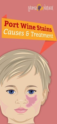 Port wine stains are a common type of birthmark, affecting 1 in 300 babies. Should you worry? What about treatments? Remedies? Here's what you need to know. http://www.mamanatural.com/port-wine-stains/