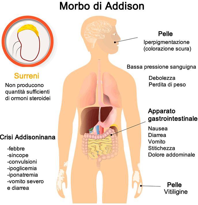 morbo-di-addison.gif (687×714)
