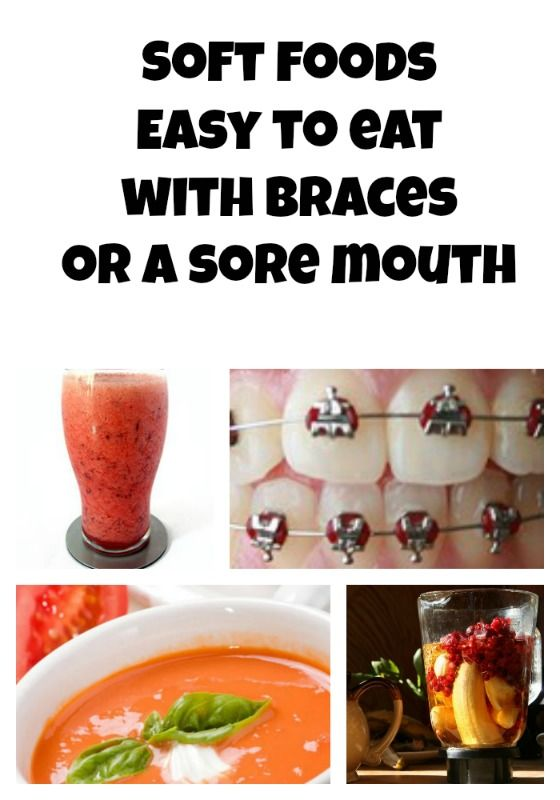 Got braces? Here are some easy to eat foods for those ouchie days from Tween Us blog