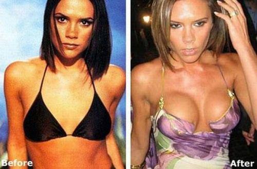 Celebrity Victoria Beckham before-after plastic surgery breast implant #plasticsurgery #celebrity