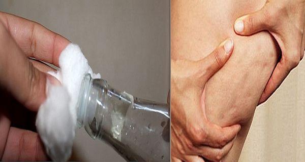 Débarrassez-vous de la cellulite rapidement et naturellement grâce à ces simples astuces