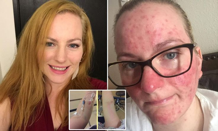 Jennifer Whitney, from Mukilteo, Washington, had the vaccine due to the insistence of her boss - despite being concerned about any side effects. However, the same boss was forced to 'let her go'.